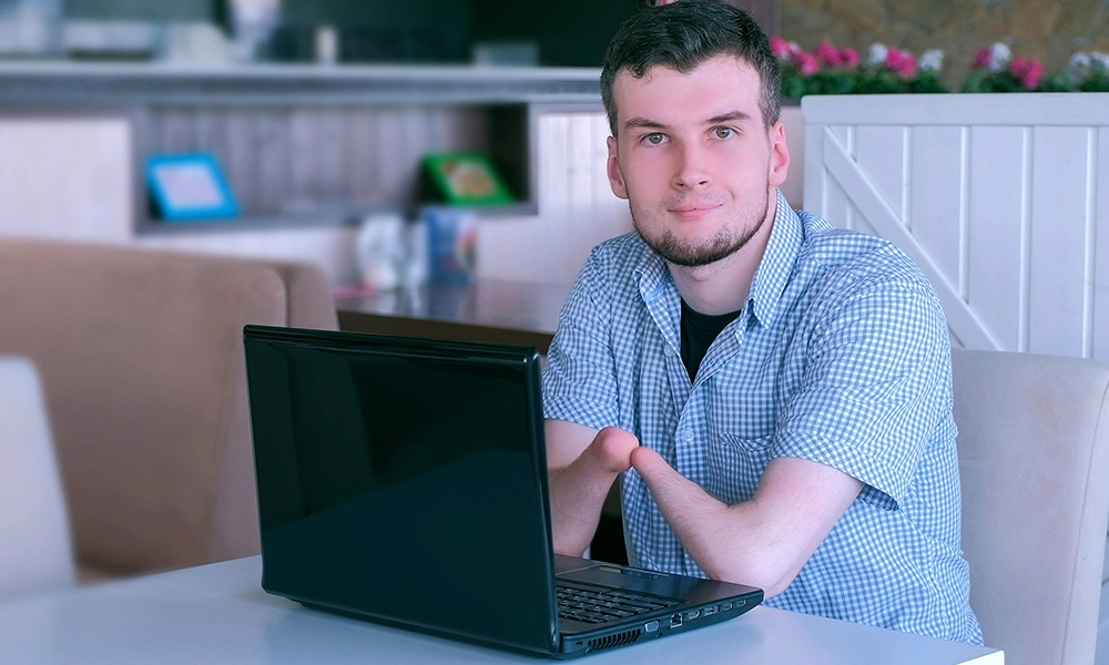 A young adult man with a limb difference on both arms sits in a bright cafe with a laptop. He is looking directly at the camera with a small smile.